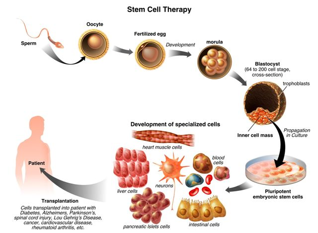 Human Umbilical Cord Tissue Stem Cells