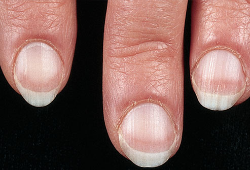 fingernails red line - MedHelp - Health community, health