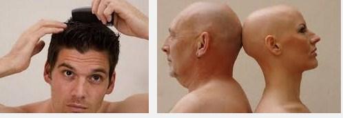 6 Cara Cepat Memanjangkan Rambut Pria Botak Secara Alami Dalam Waktu 1 Minggu