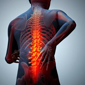 ankylosing spondylitis pictures, ankylosing spondylitis symptoms, ankylosing spondylitis treatment