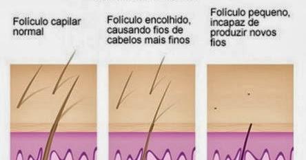 tratamento capilar a laser