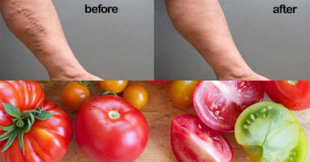 HOW TO HEAL VARICOSE VEINS WITH THE HELP OF TOMATOES