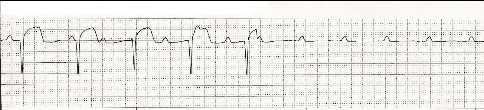 P Wave Asystole Float Nurse: EKG Rhyth...