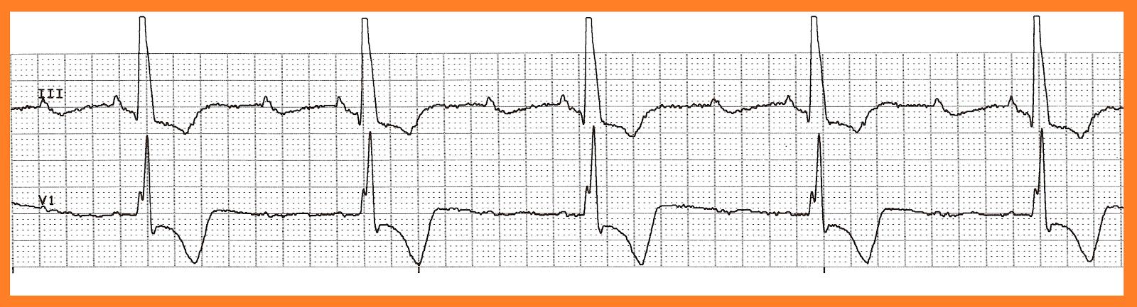 2nd degree heart block type ii 15 mobitz ii 16