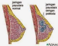 obat kista payudara