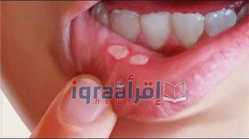أسباب ظهور فطريات الفم في الشتاء وكيفية التغلب عليها