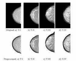 Understanding BIRADS categories in your Mammogram Report