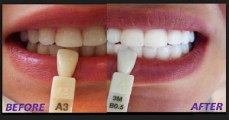 كيفية الحصول على أسنان بيضاء طبيعية في 3 دقائق