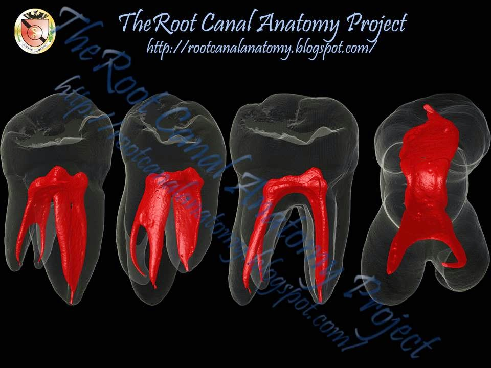 The Root Canal Anatomy Project March 2014