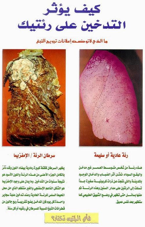 صور عن التدخين, أضرار التدخين, مضار التدخين, تأثير التدخين على الرئتين,