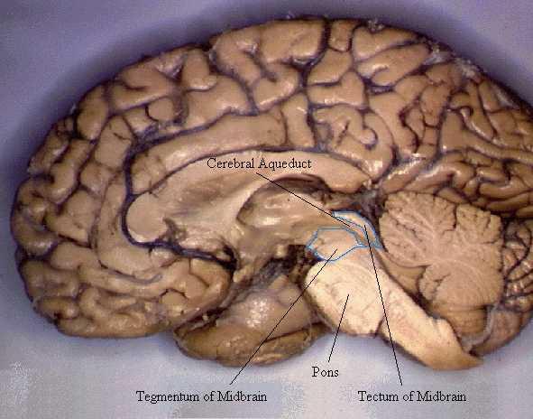 Cerebro O Encefalo Vista Lateral El Cerebro Parte Anterior Del