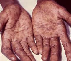 Resep Obat Untuk Penyakit Sipilis