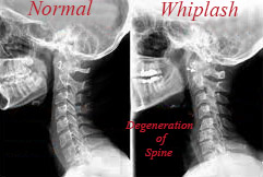 Car Accident Chiropractor Settlement