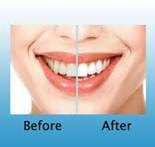 Before after cosmetic dentistry procedure