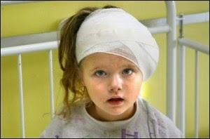 cara atasi anak sering hantuk kepala