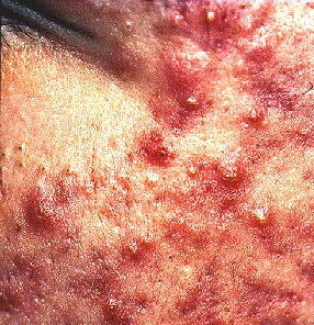 acne vulgaris diagnosis of acne vulgaris can be established based on ...