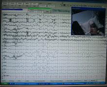 EEG 2011