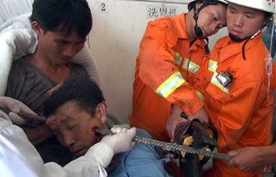 Homem sobrevive após vergalhão atravessar a cabeça.