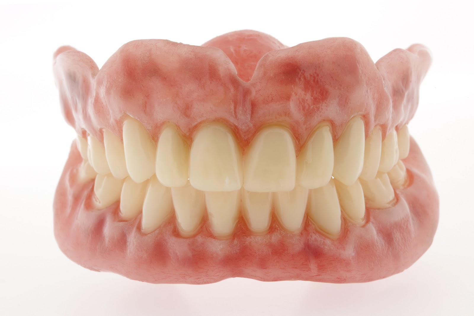 Full-denture-upper-lower-4.jpg