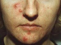 acne no more book review