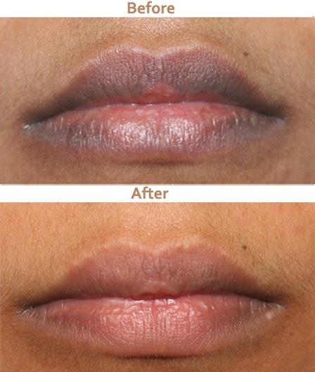 Treatment of lips