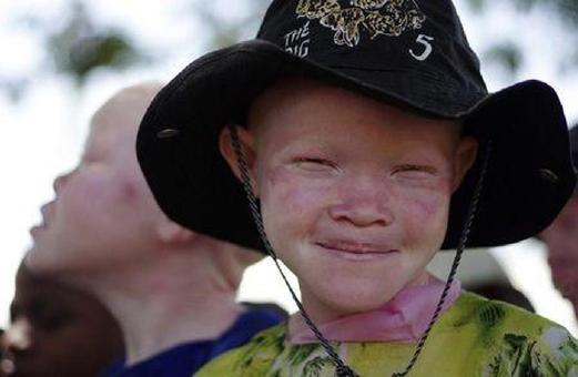 http://asalasah.blogspot.com/2015/06/praktik-jual-beli-anak-albino-untuk.html
