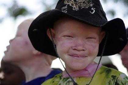 Praktik Jual Beli Anak Albino Untuk Dukun Praktek Ilmu Hitam