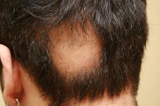 alopecia aureata