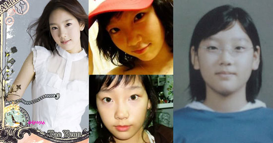 SNSD Plastic Surgery Before and After