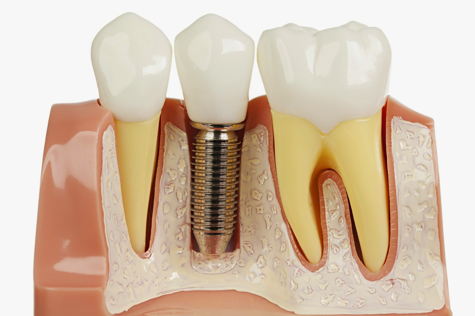 Ask your dentist if you qualify for dental implants