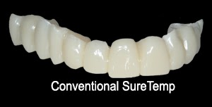 Provisional Restoration, Dental Temporary