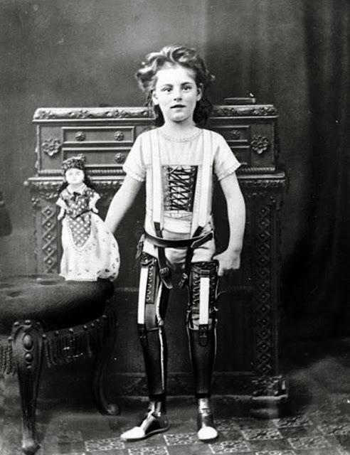 Протезы ног, Великобритания, приблизительно 1890 г.