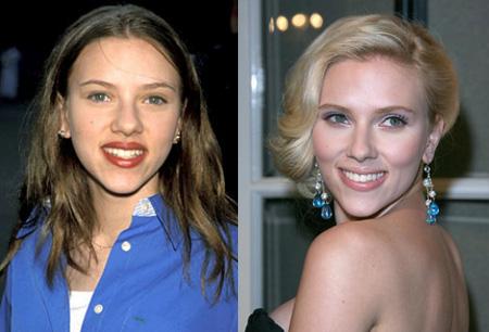 фото ринопластики до и после зураб