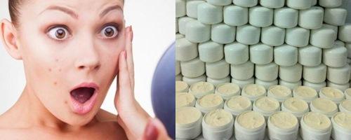 cách tốt nhất để trị mụn đầu trắng | Làm đẹp tựnhiên bằng thảo dược ...