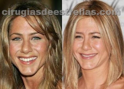 jennifer aniston antes y despues