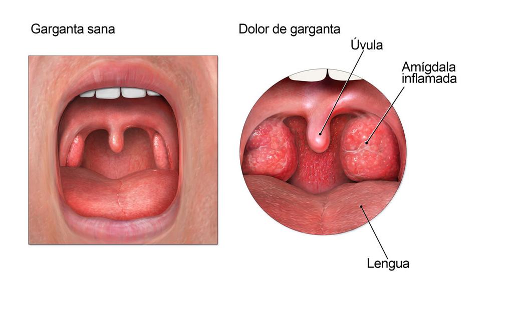 Anatomía Aplicada: Amigdalitis