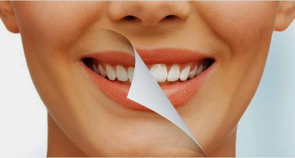tips memilih obat pemutih Gigi Anda Kuning? Begini Cara Memilih Obat Pemutih Gigi