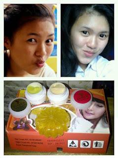 Cream Khusus Penghialng Jerawat dan Flek Hitam Esther New BPOM