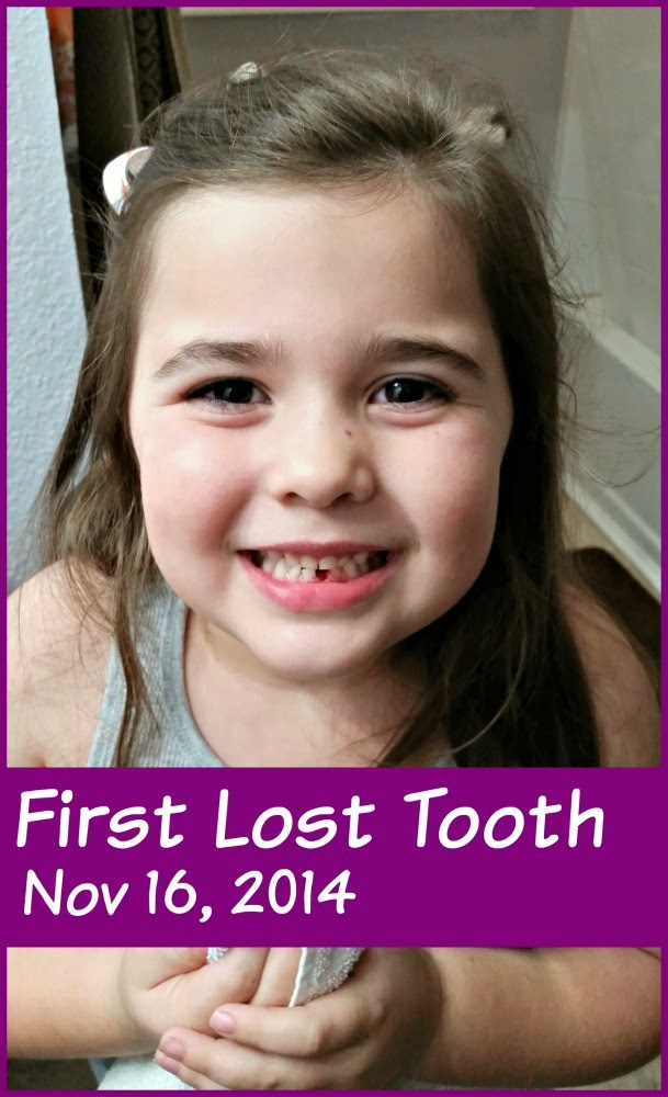 The Tooth Fairy Came | #tingsmom #kidstuff #justlikefamily #toothfairy