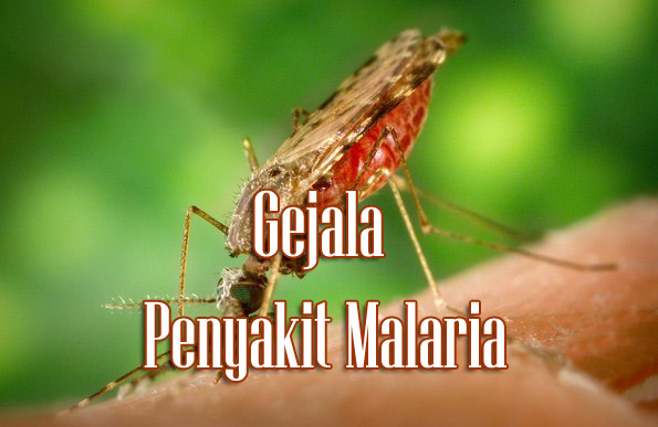 Gejala Penyakit Malaria Secara Umum