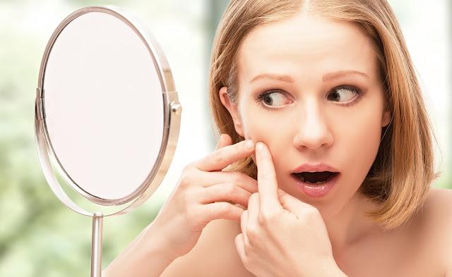 Prendre soin d'une peau acnéique