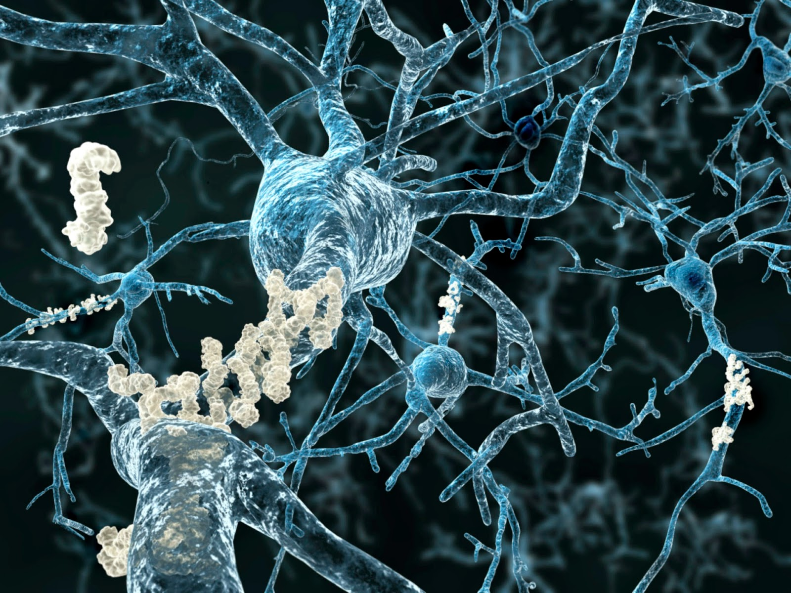 New Approach Blocks Amyloid Production In Alzheimer's Model