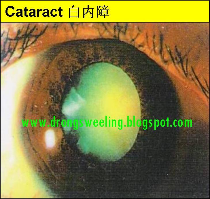 Tcm News Can Tcm Cure Eyes Diseases