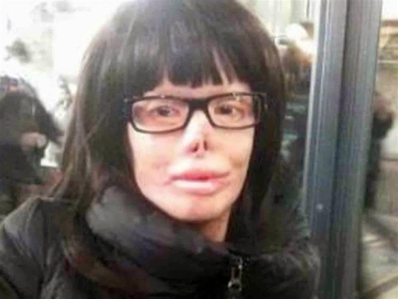 Valentina Pitzalis dopo