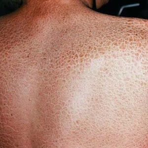 Ichthyosis Vulgaris: Complication, Causes, Symptoms ...