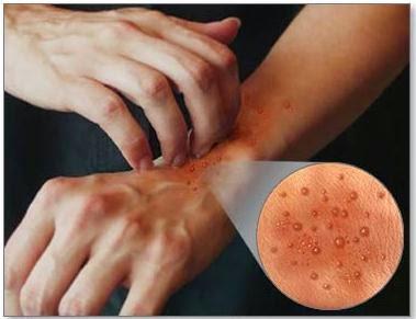 obat alergi tradisional alami