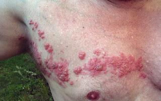 Herpes Zoster di dada Info Kesehatan Indonesia
