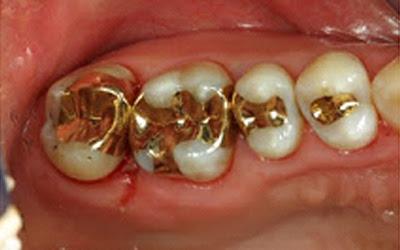 Harga Tambal Gigi Berlubang, Patah dengan Laser dan Amalgam di Klinik Swasta dan Puskesmas