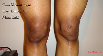 cara memutihkan siku, lutut, dan mata kaki