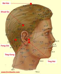 Acupuncture Treatment of Tinnitus